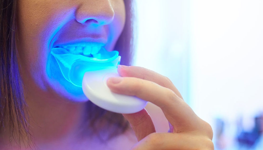 A young woman using her teeth whitening mouthpiece at home